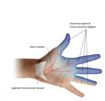 explicatie-sindrom-tunel-carpian